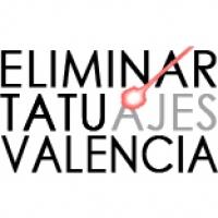 Eliminar Tatuajes Valencia